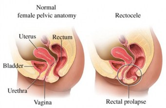 RECTOCELE: Dropped rectum