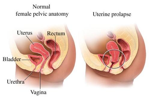 Cystocele causing pain dating