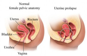 Prolapse of the Uterus