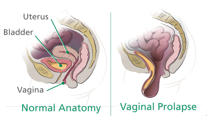 Removal of bladder and vagina